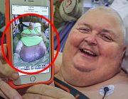 der-us-amerikaner-roger-logan-ist-nach-seiner-operation-auf-dem-weg-der-besserung tumor
