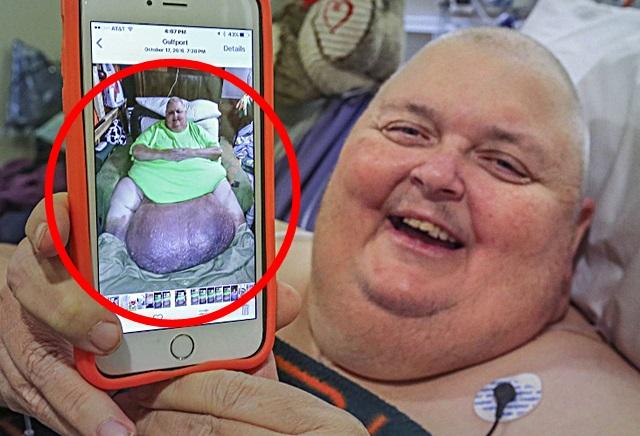 Chirurg entfernt 59 Kilo schweren Tumor