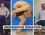 Gefalteter Mann kann nach 28 Jahren wieder gerade stehen morbus bechterev rheumatische Erkrankung Titelbild