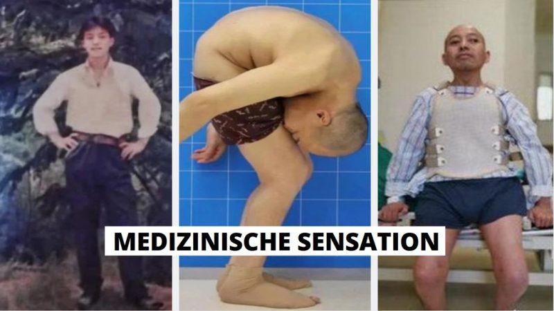 Morbus Bechterew Patient Erfolgreich operiert. Nach 28 Jahren kann er endlich wieder stehen